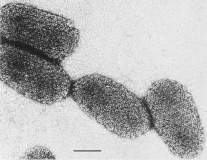 Virus Rabies Yang Diperbesar